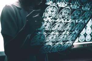 Alzheimer_stades_Physiotherapie_Quebec